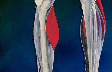 Vascular Surgery Associates - Peripheral Artery