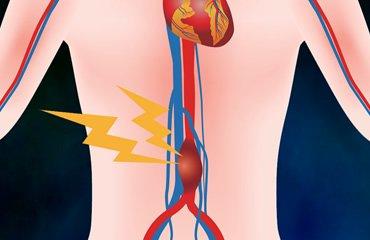 Vascular Surgery Associates - Aneurysms